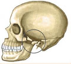 comminuted-zygomatic-arch-fracture-dr-barry-eppley-indianapolis.jpeg