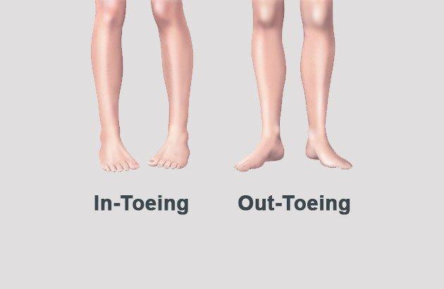 pigeon-toes.jpg